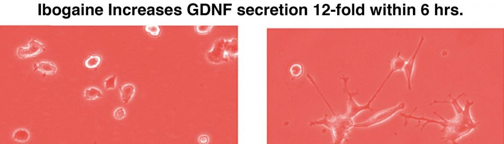 GDNF on brain cell growth